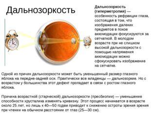 Дальнозоркость Дальнозоркость (гиперметропия) — особенность рефракции глаза,