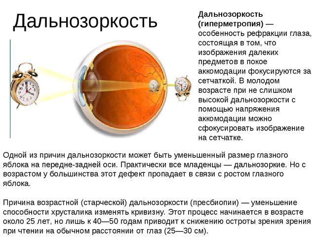 Дальнозоркость Дальнозоркость (гиперметропия) — особенность рефракции глаза,...