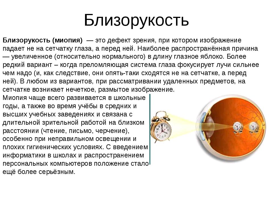 Близорукость Близорукость (миопия) — это дефект зрения, при котором изображен...
