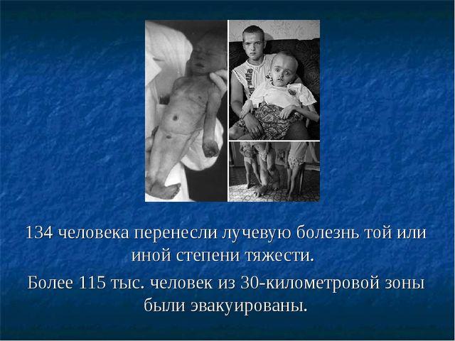 134 человека перенесли лучевую болезнь той или иной степени тяжести. Более 11...