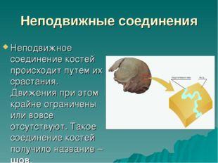 Неподвижные соединения Неподвижное соединение костей происходит путем их срас