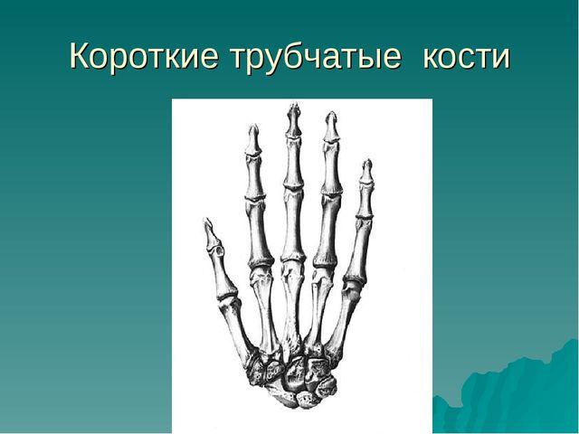 Короткие трубчатые кости