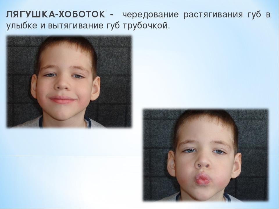 ЛЯГУШКА-ХОБОТОК - чередование растягивания губ в улыбке и вытягивание губ тру...