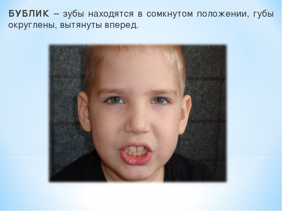 БУБЛИК – зубы находятся в сомкнутом положении, губы округлены, вытянуты вперед.