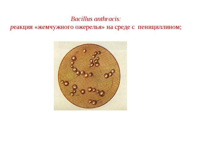 Bacillus anthracis: реакция «жемчужного ожерелья» на среде с пенициллином;
