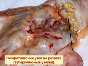 Лимфатический узел на разрезе (туберкулезные узелки).
