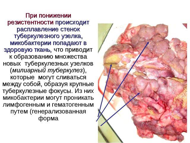 При понижении резистентности происходит расплавление стенок туберкулезного у...
