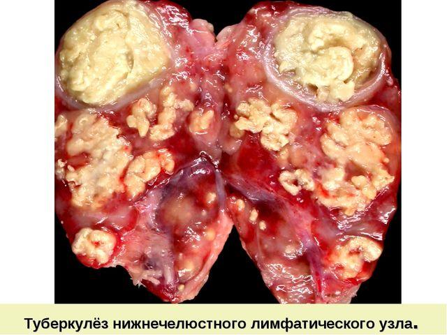 Туберкулёз нижнечелюстного лимфатического узла.