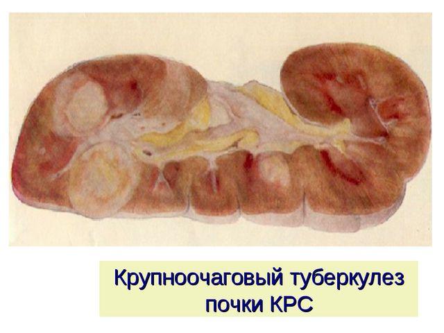 Крупноочаговый туберкулез почки КРС