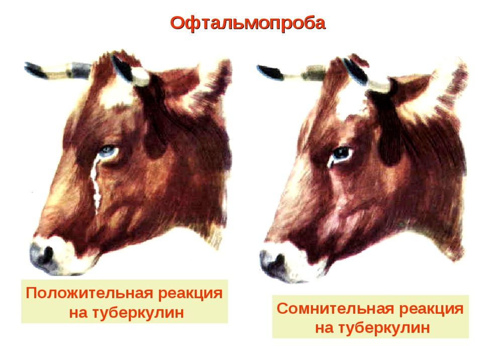 Положительная реакция на туберкулин Сомнительная реакция на туберкулин Офталь...