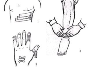 Рис. 9. Повязки лейкопластырные: 1 — при переломе ребер; 2 — на пальцы; 3 — н