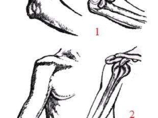 Положение костей при вывихах: 1 — задний вывих предплечья; 2 — передний вывих
