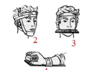 Способы иммобилизации 2 — нижней челюсти с помощью плащевидной повязки; 3 — в