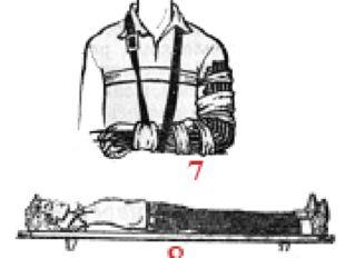 Способы иммобилизации 7 — костей предплечья шиной из хвороста; 8 — грудного о