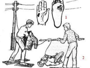1 — «знаки тока»; 2 — освобождение пострадавшего от действия электрического т