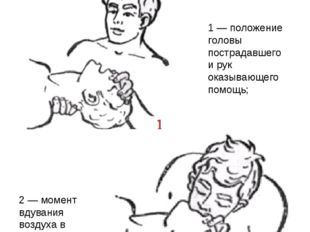2 — момент вдувания воздуха в легкие пострадавшего через рот Прием искусствен