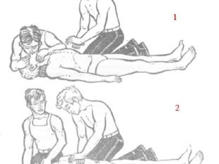 1 — момент вдувания воздуха в легкие пострадавшего; 2 — момент массажа сердца