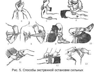Рис. 5. Способы экстренной остановки сильных кровотечений: 1,2,3,4,5,6— пальц