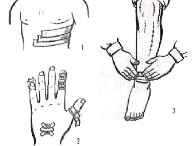 Рис. 9. Повязки лейкопластырные: 1 — при переломе ребер; 2 — на пальцы; 3 — н...