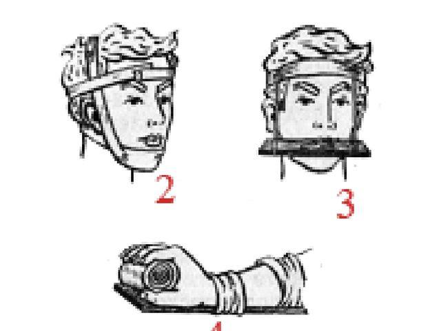 Способы иммобилизации 2 — нижней челюсти с помощью плащевидной повязки; 3 — в...
