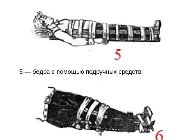 5 — бедра с помощью подручных средств; Способы иммобилизации 6 — прибинтовыва...