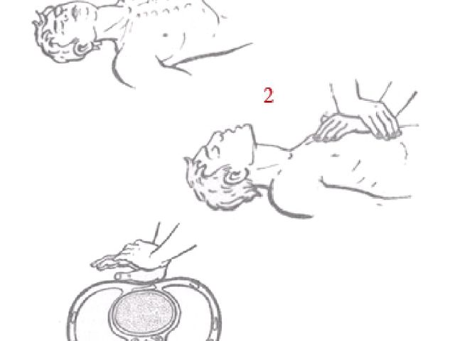 1 - место надавливания на грудину; 2 - положение рук оказывающего помощь; 3-...
