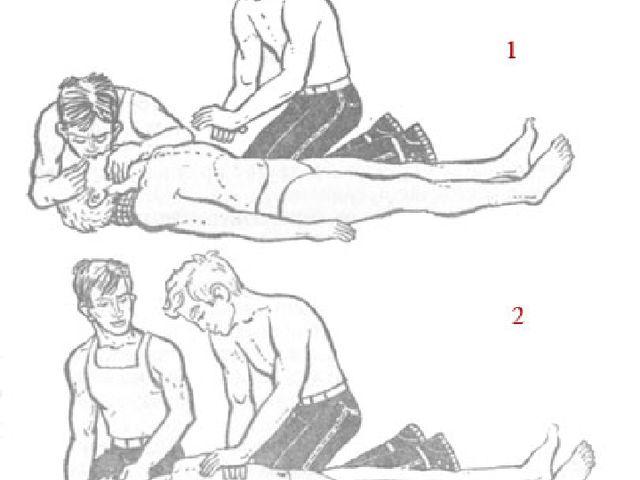 1 — момент вдувания воздуха в легкие пострадавшего; 2 — момент массажа сердца...