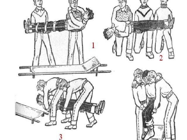 Приемы укладывания пострадавшего на носилки