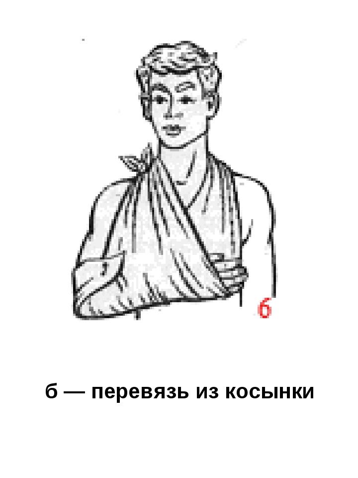 б — перевязь из косынки