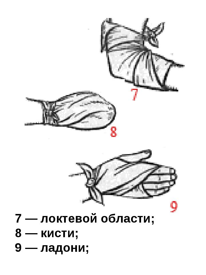 7 — локтевой области; 8 — кисти; 9 — ладони;