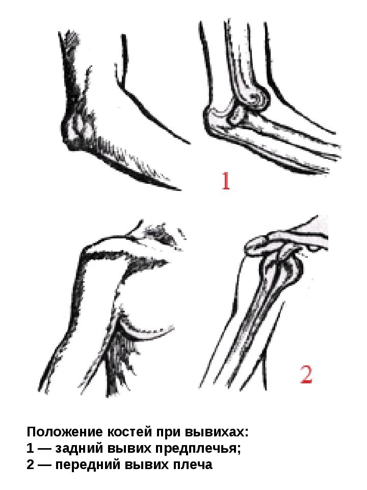 Положение костей при вывихах: 1 — задний вывих предплечья; 2 — передний вывих...