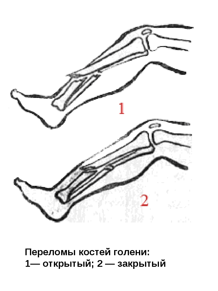 Переломы костей голени: 1— открытый; 2 — закрытый