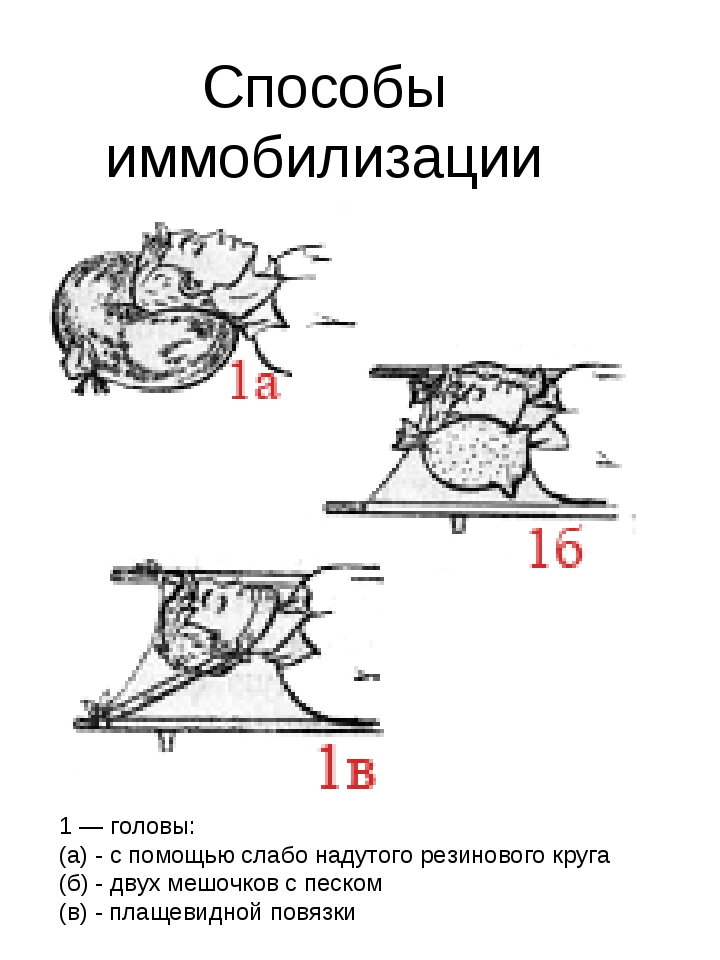 Способы иммобилизации 1 — головы: (а) - с помощью слабо надутого резинового к...
