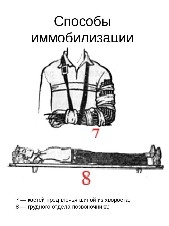 Способы иммобилизации 7 — костей предплечья шиной из хвороста; 8 — грудного о...