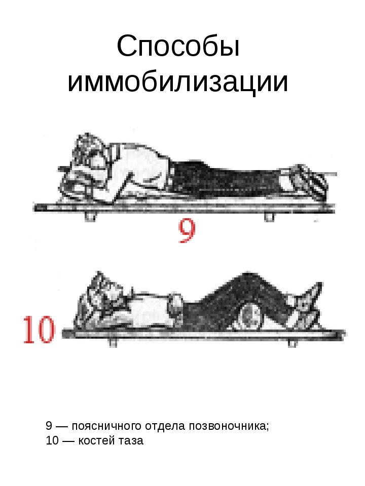 Способы иммобилизации 9 — поясничного отдела позвоночника; 10 — костей таза