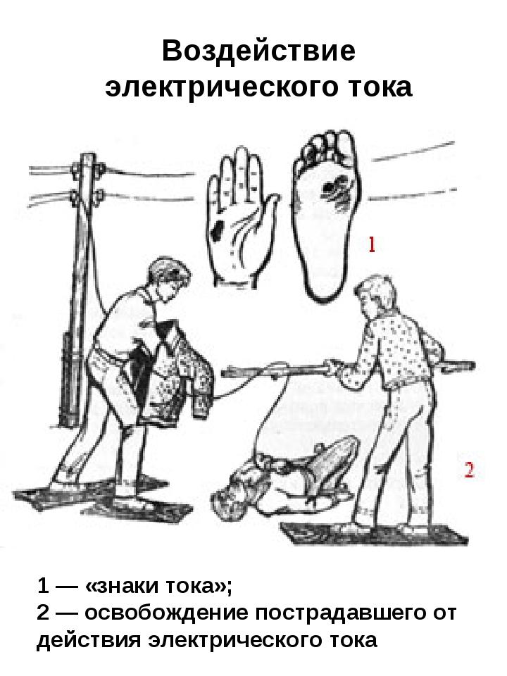 1 — «знаки тока»; 2 — освобождение пострадавшего от действия электрического т...
