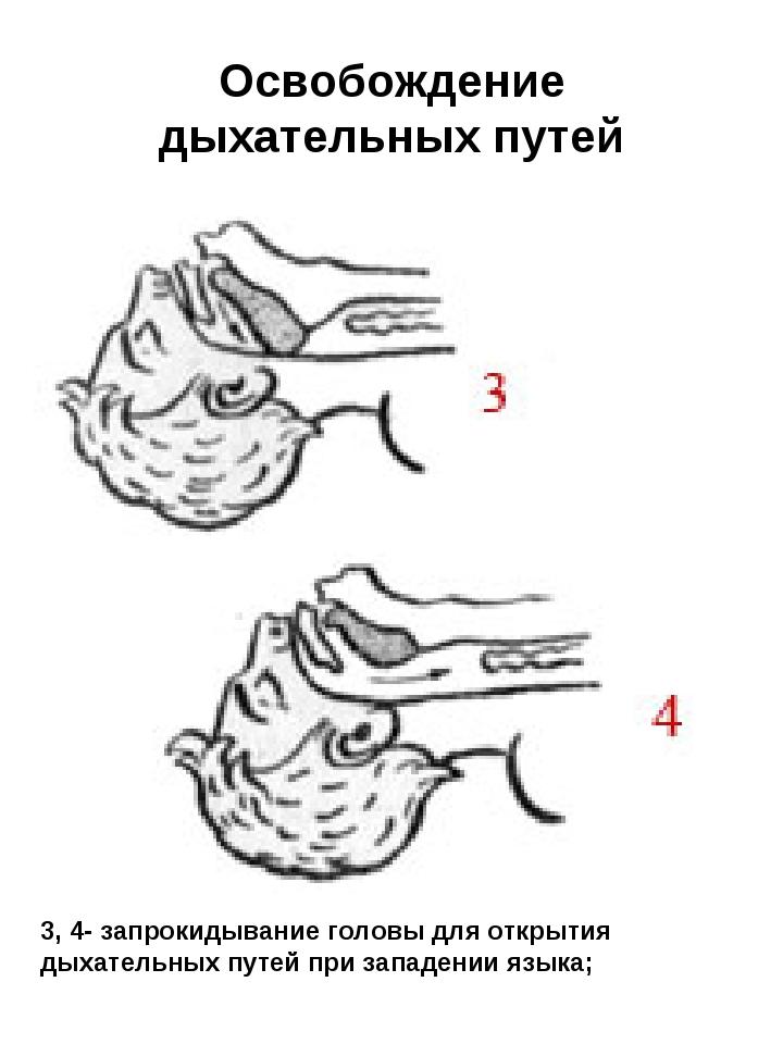 Освобождение дыхательных путей 3, 4- запрокидывание головы для открытия дыхат...