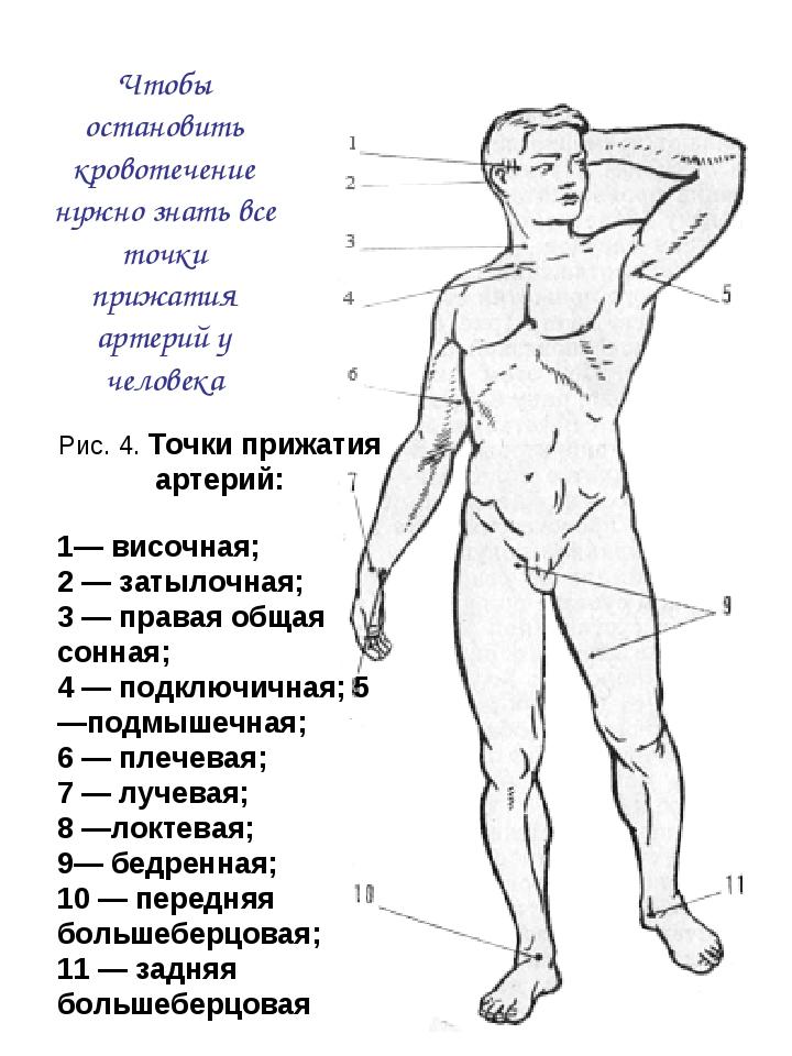 Рис. 4. Точки прижатия артерий: 1— височная; 2 — затылочная; 3 — правая общая...