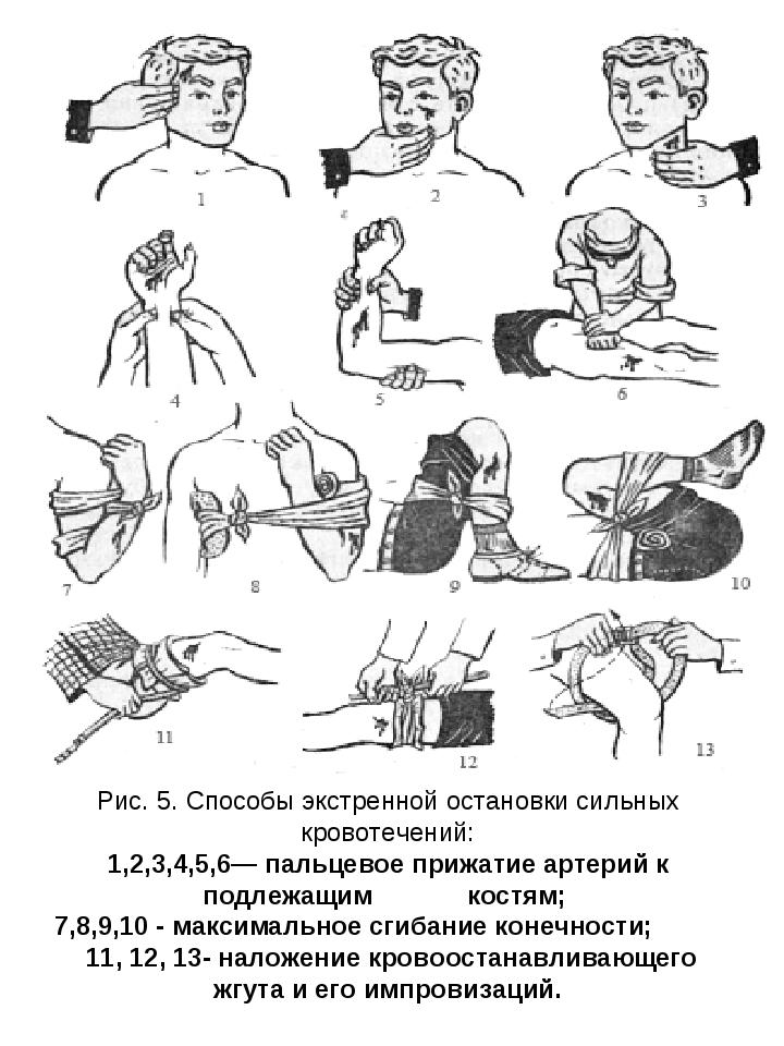 Рис. 5. Способы экстренной остановки сильных кровотечений: 1,2,3,4,5,6— пальц...