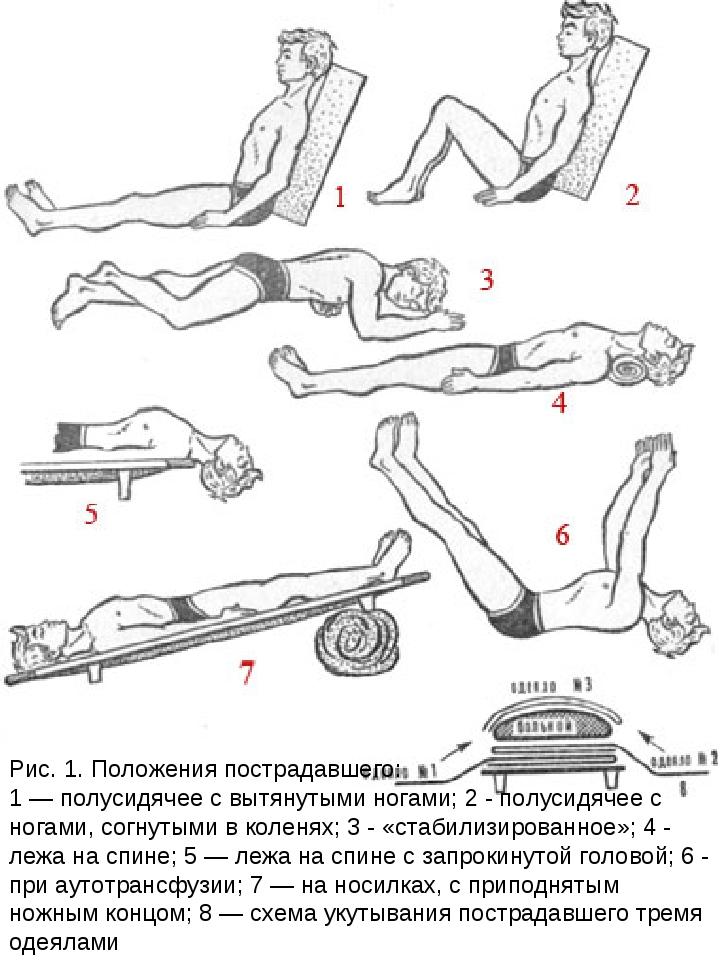 Рис. 1. Положения пострадавшего: 1 — полусидячее с вытянутыми ногами; 2 - пол...
