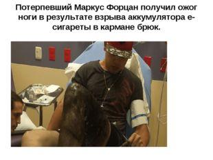 Потерпевший Маркус Форцан получил ожог ноги в результате взрыва аккумулятора