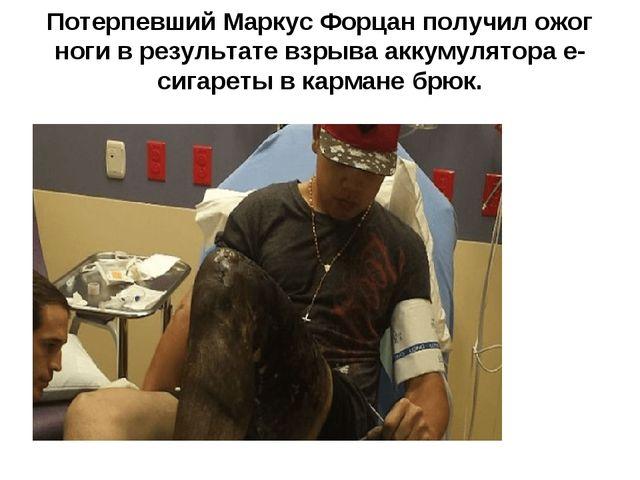 Потерпевший Маркус Форцан получил ожог ноги в результате взрыва аккумулятора...