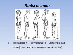 Виды осанки а — нормальная; б — сутуловатая; в — лордотическая; г — кифотичес