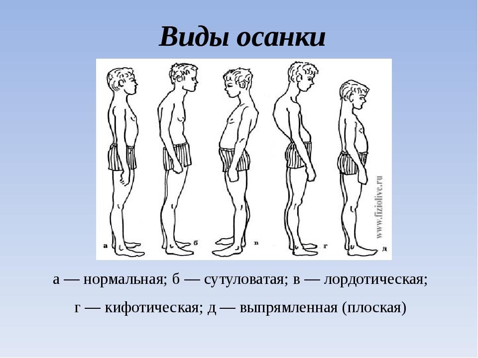 Виды осанки а — нормальная; б — сутуловатая; в — лордотическая; г — кифотичес...