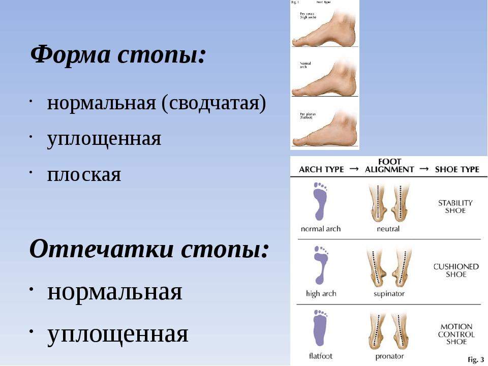 Форма стопы: нормальная (сводчатая) уплощенная плоская Отпечатки стопы: норма...
