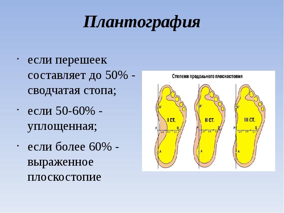 Плантография если перешеек составляет до 50% - сводчатая стопа; если 50-60% -...