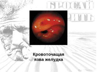 Кровоточащая язва желудка