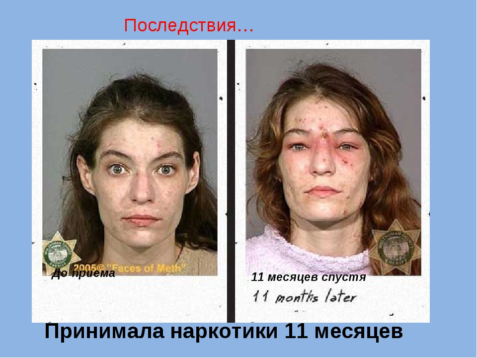 Принимала наркотики 11 месяцев До приема 11 месяцев спустя Последствия…