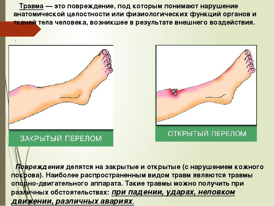 Травма — это повреждение, под которым понимают нарушение анатомической целос...