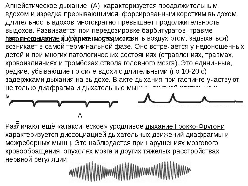 Апнейстическое дыхание (А) характеризуется продолжительным вдохом и изредка п...